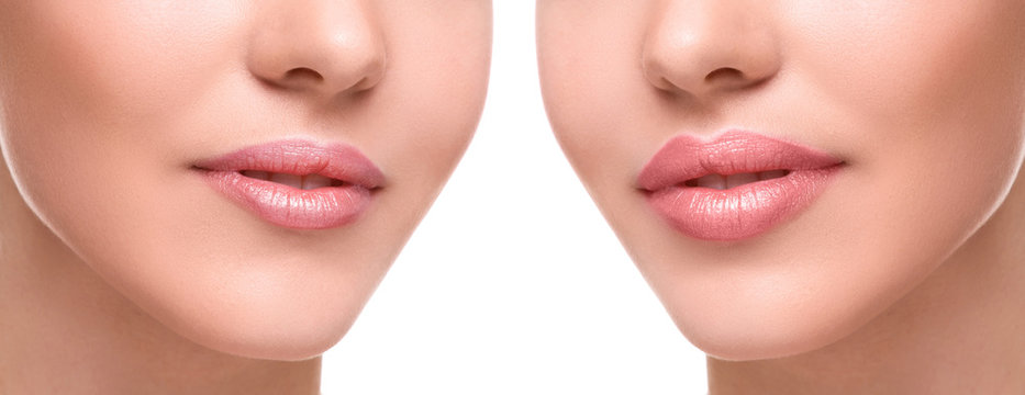 Lips  before and after augmentation