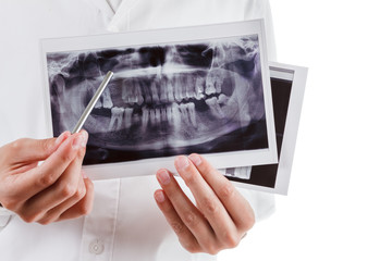 Dentist shows a picture of the jaw