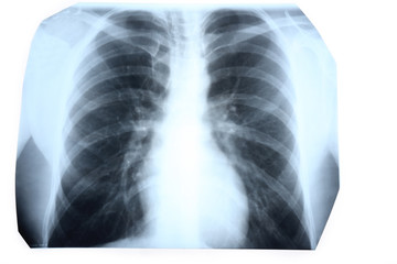 X-ray of human chest isolated on white