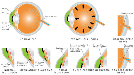 Glaucoma is an eye disease