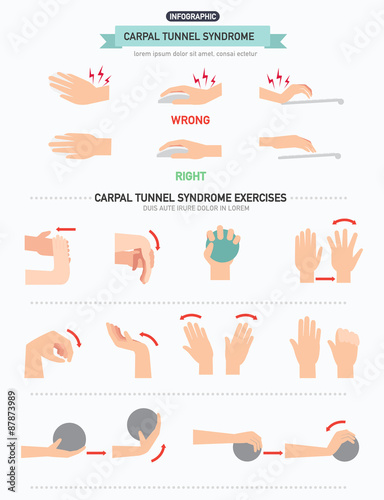 Carpal Tunnel Syndrome Infographic Stock Image And Royalty Free