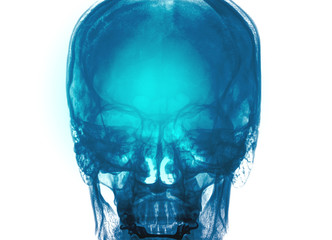 Close up of a x-ray of a human skull