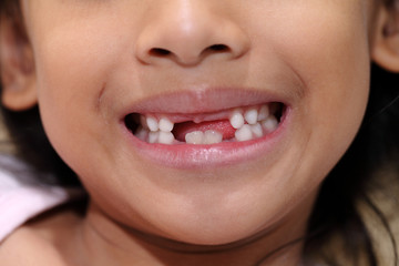 Young girl with missing front tooth