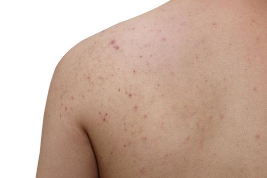 acne on a man back