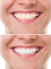 Before and after bleaching or whitening