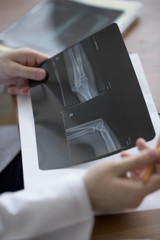 Doctor examining an elbow x-ray