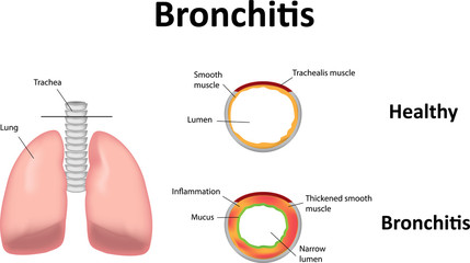 Bronchitis Illustration,