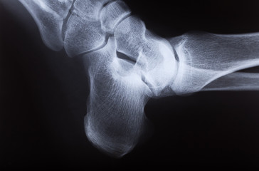 x-ray image of human foot joint , side view