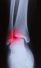 x-ray image of human foot joint , back view