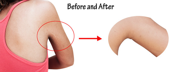 before and after scratch mark and wrinkle of armpit