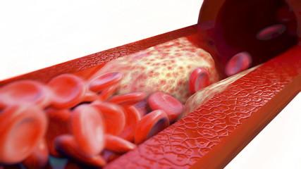 Blutgerinsel / Thrombose