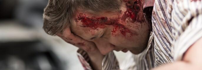 Man injured on head