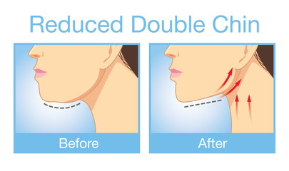 Illustration before and after reduce a double chin. Look firming up in after image.
