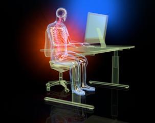 Rückenschmerzen, Illustration 3D