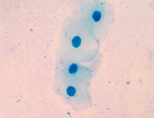 Blue squamous cell