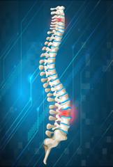 Human spine diagram on blue