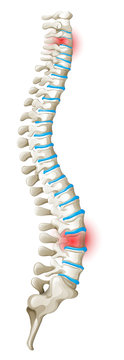 Spine back pain diagram