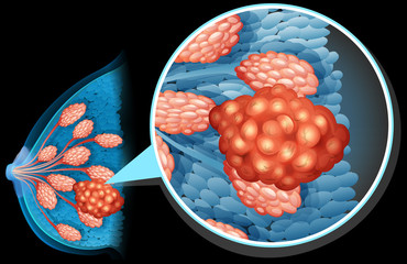 Breast cancer diagram close up