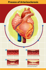 Poster of Arteriosclerosis process