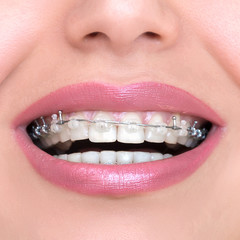 Closeup Ceramic and Metal Braces on Teeth. Self-ligating Brackets. Orthodontic Treatment. Woman Smiling Showing Dental Braces..