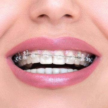Closeup Ceramic and Metal Braces on Teeth. Self-ligating Brackets. Orthodontic Treatment. Woman Smiling Showing Dental Braces..