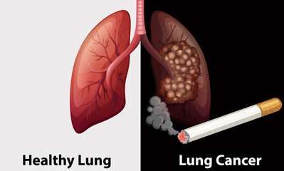 Healthy lung against lung cancer diagram