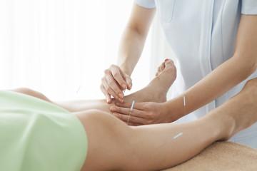 Women acupuncturist