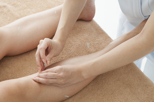 Acupuncturist, pointing to acupuncture to women's knee