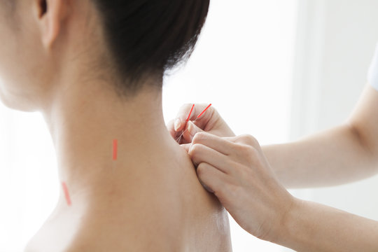 Acupuncturist is treating a woman's shoulder