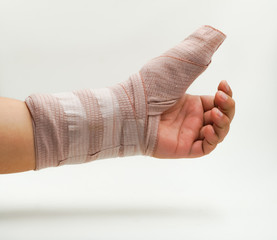 splint finger a broken bone
