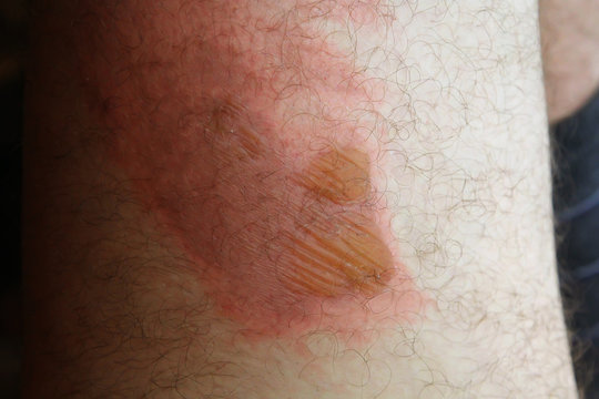 Thermal injuries. Burn the legs of the second degree