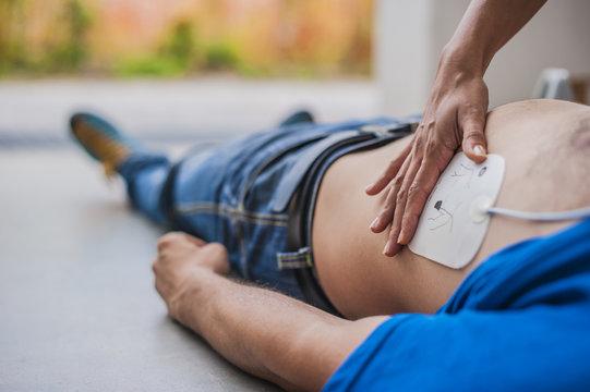 Applicazione elettrodi defibrillatore