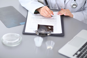 Close up of female doctor  filling up  a medical history form, sitting at the table in hospital