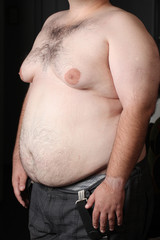 Big belly obese men. Disease and metabolic disorders.