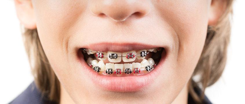Smile with braces - Sorriso con apparecchio ortodontico