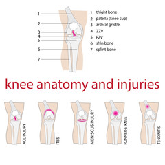 vector illustration of knee anatomy with description and injuries