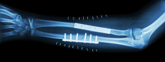 Fracture both bone of forearm ( ulnar and radius ) .  It was operated and internal fixed by plate and screw