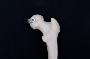 Femoral Head, Posterior View