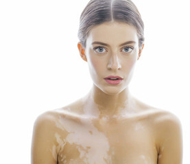beautiful young brunette woman with vitiligo disease close up