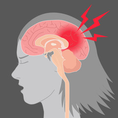 headache, cerebral hemorrhage, brain stroke, image illustration