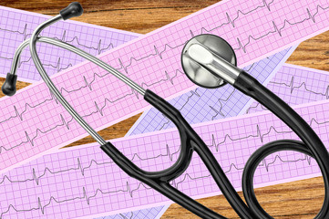 Heart analysis, electrocardiogram graph (ECG) and stethoscope ov