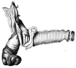 Intussusception at ileocecal valve, vintage engraving.