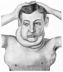 Hodgkin's disease, vintage engraving.