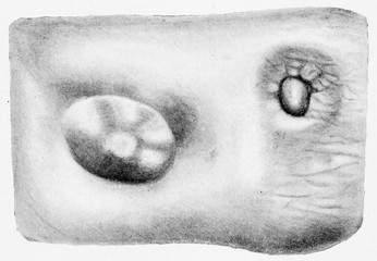 Part of cutaneous surface of right mamma, vintage engraving.