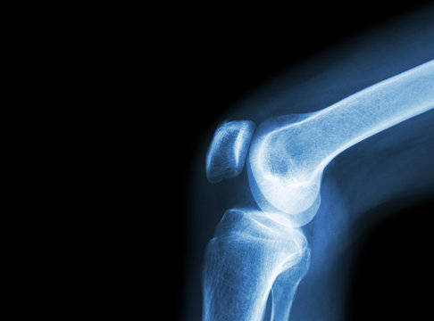 Film x-ray knee joint with arthritis ( Gout , Rheumatoid arthritis , Septic arthritis , Osteoarthritis knee ) and blank area at left side