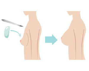 豊胸 Silicone Breast Implant with sideview of body