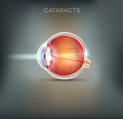 Cataracts abstract grey background