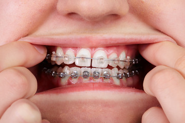 Teeth with orthodontic brackets.