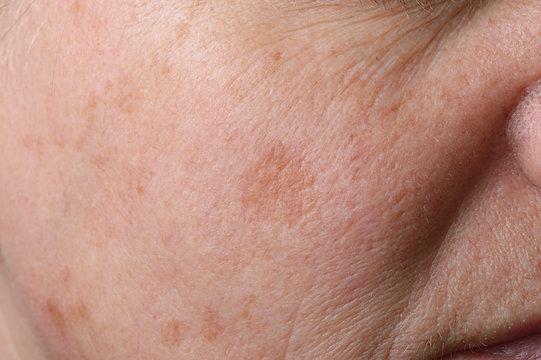 Altersflecken Lentigines seniles im Gesicht