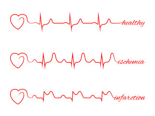 Heart beats various cardiogram vector set